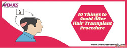 10 Things To Avoid After A Hair Transplant Procedure