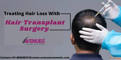 Treating hair loss treatment in Ahmedabad