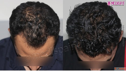 Best Hair Transplant in Agra at Medispa Clinic